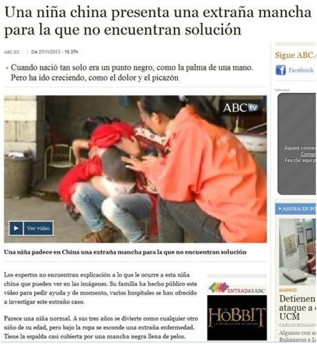 La noticia sin solución de la niña china y la extraña mancha